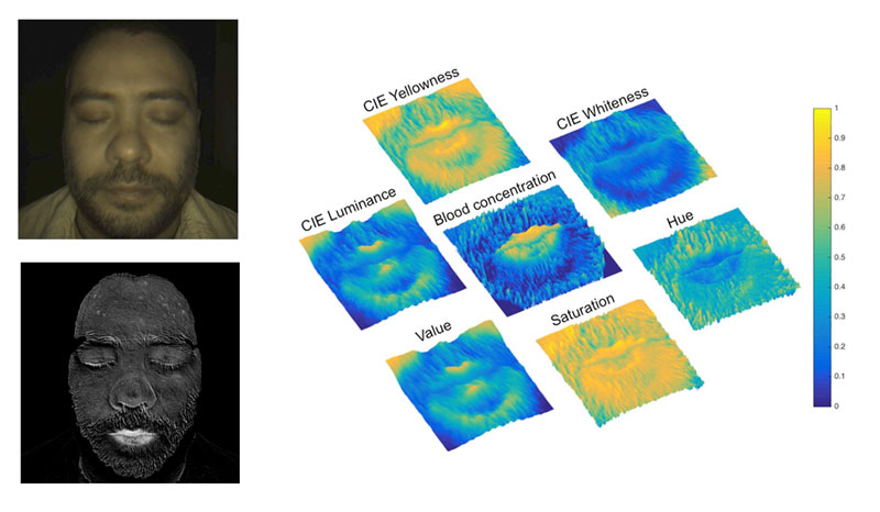 Figure 2: Left: a colour image of a face and the corresponding blood concentration map. Right: comparison of the blood concentration map with colorimetric maps (false colour representation).