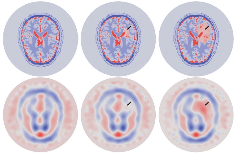 Figure 3: Imaginary part of the permittivity during the evolution of a simulated hemorrhagic CVA (from left to right: healthy brain, small CVA, large CVA). Top row: exact virtual brain model. Bottom row: reconstructed permittivity.