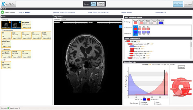 "Figure 1: A screenshot of the decision support tool. On the left-hand side the different information sources are shown, including, in this example, MRI imaging data, neuropsychological test results, background information and cerebrospinal fluid (CSF) data. The middle panel shows the image analysis view which allows for automatic segmentation, quantification and visualisation of relevant parts of the brain. The right hand panel shows the multi-variate decision support functionality. At the top, the various forms of dementia that can be considered are shown, below is a ""disease state fingerprint"" indicating visually and quantitatively to which disease group this patient most likely belongs, together with the relative importance of the different variables. Finally, the raw data distributions of separate variables can be examined in the bottom right panel."