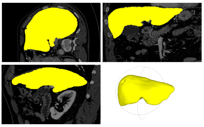Figure 1: Liver segmentation and 3D modelling on CT data: Segmentation result in axial, coronal, sagittal view and the rendered 3D model of the liver.