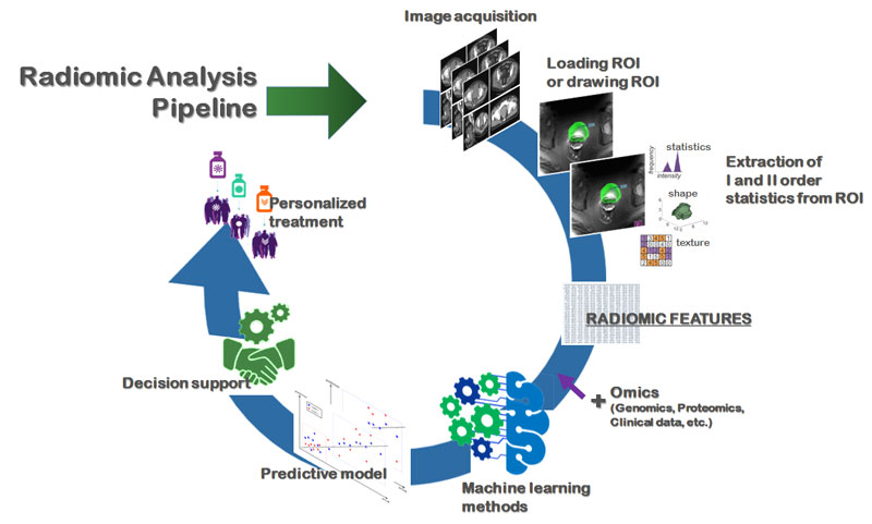 Figure 1: The pipeline of radiomic analysis toward precision medicine. For each of the imaging modalities (MRI, TC, PET, US), the first phase involves a semi-automatic or automatic segmentation of the relevant regions; this is followed by the automatic extraction of a large number of features (descriptive of the histogram, shape, texture and texture). These features are then processed with machine learning techniques, such as feature selection techniques and comparative analysis, to select the most robust ones that correlate to ground truth biomarkers (used in clinical practice).