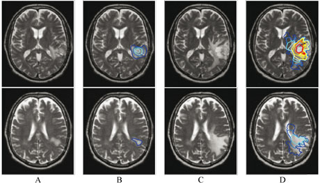 Figure 1: Tumor growth simulation based on patient images. (A) T2 MRI of the patient in March 2002 (two different slices are shown). (B) MRI A with superimposed iso-densities of tumor cells used as initial conditions for the model. (C) T2 MRI of the same patient in September 2002 (6 months later). (D) MRI C with superimposed iso-densities of tumor cells simulated with model. Real tumor -C- and simulated tumor -D- show similar growth patterns.