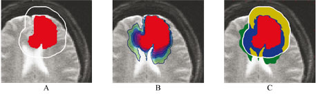 Figure 2. Application of the model to radiotherapy on a synthetic case. (A) Red: segmentation of the visible tumor in the image. White line: contour of the region targeted with radiotherapy. A constant margin of 1.5cm is used. (B) Estimated distribution of tumor cells computed with the model. The estimated distribution of tumor cells is highly inhomogeneous. (C) Blue: area invaded by the tumor and targeted by radiotherapy. Yellow: estimated healthy tissue targeted by radiotherapy. Green: invaded area of the brain that may be targeted by radiotherapy. The model could be used to adapt the targeted volume to apply the radiotherapy dose to the blue and green regions only.