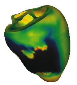 Figure 1: Simulation of the action potential and re-entry on the ventricular section of the heart visualized as geometry.