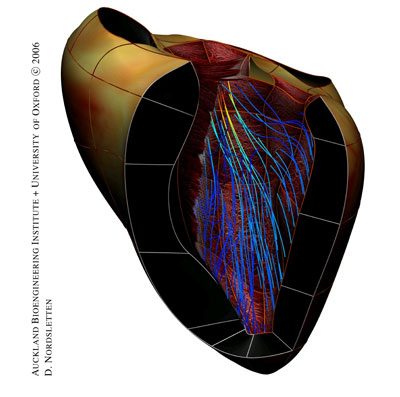 Oxford-Auckland multiscale model of a human heart, representing the anatomy, the muscles fibres orientation and the hemodynamics. Image courtesy of David Nordsletten and Nic Smith, University Computing Laboratory, University of Oxford.