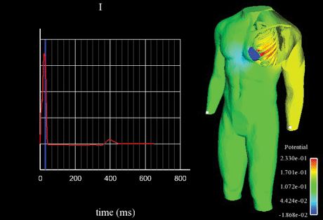 Electrical activity of the heart coupled to the torso: first standard lead of an electrocardiogram. A simulation realised by the INRIA REO team.