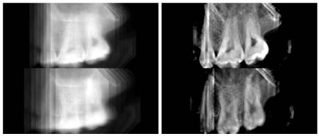 Figure 1: (left) Two slices of a traditional x-ray image reconstruction of teeth; (right) the corresponding slices of a reconstruction made with our statistical inversion methods from the same raw data.