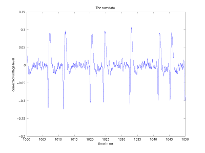 Figure 1: A sample of recorded activity from a dying neuron. Listening to the sonified signal is really spooky, as it strongly resembles a scream.