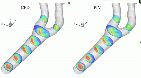 Figure 1: (left) Numerical steady velocity isocontours in selected cross-sections of a carotid artery network; (right) velocity field measured in the same loci using PIV. The phantom was built by rapid prototyping from the surface mesh of the computational model (study carried out at Ecole Polytechnique de Montréal in the framework of INRIA Associated Team 'CFT').