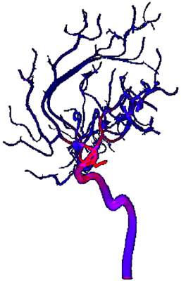 Figure 1: Cerebrovascular blood flow - von Mises stress field.  Blue indicates a stress of 0 Pa and red a stress of 6.7 Pa.