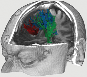Overlay of a patient's tractography (a procedure to demonstrate the neural tracts) with anatomic magnetic resonance imaging. This allows a medical expert to better visualize and localise neuronal fibres. Modelling and visualizing brain function and pathophysiology is one of the exemplar projects proposed by the ERCIM Working Group Digital Patient. © INRIA/ASCLEIPOS.