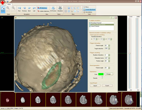 Figure 1: An example of visualizing the simulated tumor in brain, using the DoctorEye Tool, after 65 days of evolution. The initial tumor is reddish, while the simulated tumor is greenish.