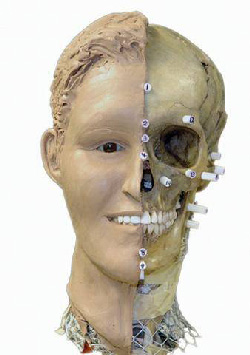 Figure 1: Forensic anthropology aims to identify crime victims. The superprojection compares the skull with 2D photographs of missing persons.