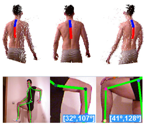 Figure 3: Automatic RGB-Depth analysis of a patient's spine and the range of movement estimation of different body articulations.
