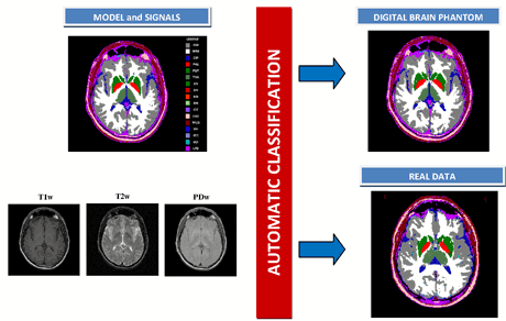 Figure 1: A single slice of the digital brain phantom and the corresponding MRI T1W, T2W and PDW signals (left), automatic tissue classification obtained (right).